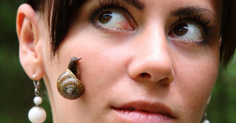 escargot dans la peau